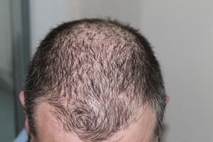 reviive - hair loss